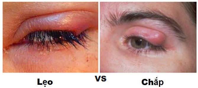 Cách phân biệt chắp mắt và lẹo mắt