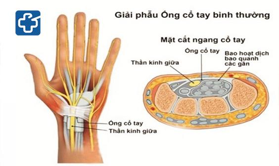 Hội chứng ống cổ tay là gì? Phẫu thuật hay tập vật lý trị liệu hội chứng ống cổ tay?