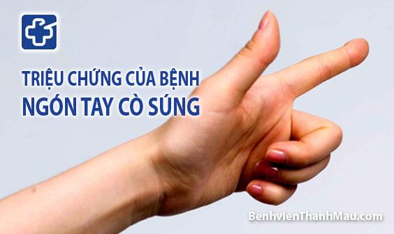 Triệu chứng ngón tay bật - ngón tay cò súng