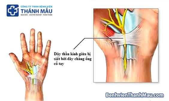 Tìm hiểu về Hội chứng ống cổ tay - VTV