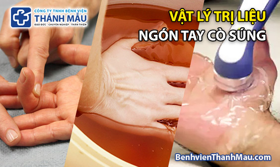vat ly tri lieu ngon tay co sung trigger finger therapy